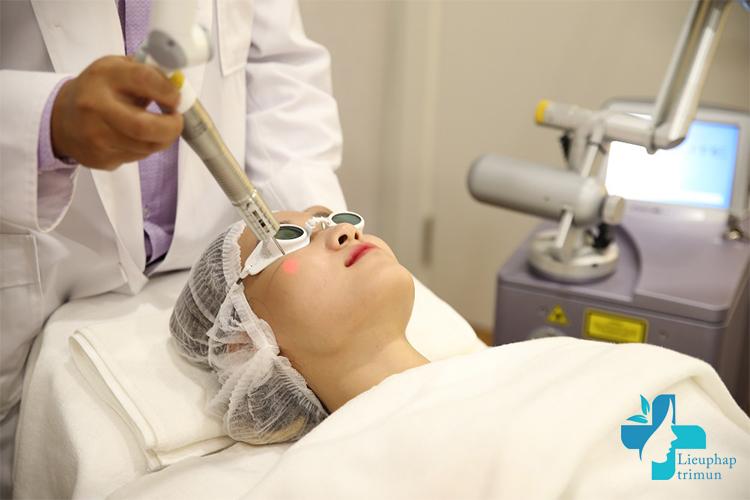Những câu hỏi thường gặp khi điều trị mụn bằng laser
